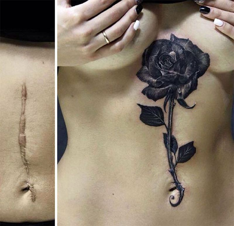 Clever tattoo designs that turn scars into beautiful works for Scar tattoo cover up
